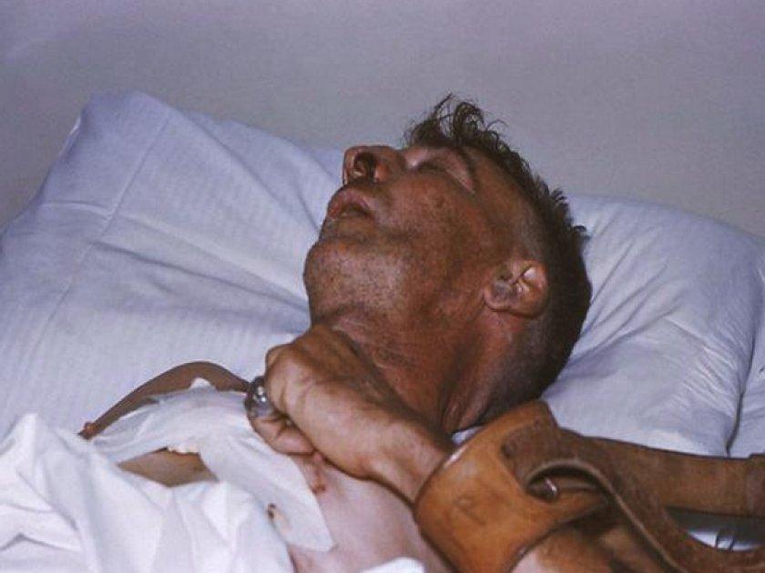 Состояние человека после укуса собаки